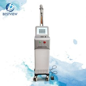 Diodo laser hair removal machine BM-106
