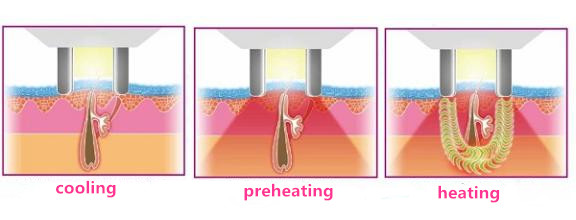 Effect contrast: which one is better, IPL hair removal or Laser hair removal?