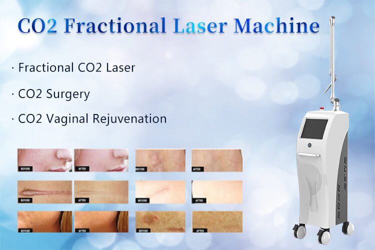 Fractional CO2 Laser Machine for Gynecology